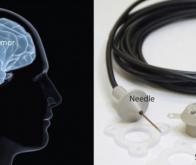 Des ultrasons contre le cancer du cerveau