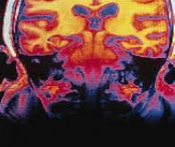 Abivax : nouveaux horizons dans les maladies inflammatoires