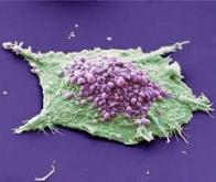 Affamer les cellules cancéreuses en bloquant leur métabolisme