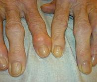 Arthrose : une thérapie cellulaire à l'essai au niveau européen