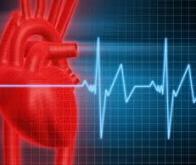 Une nouvelle méthode pour prévoir les risques d'infarctus