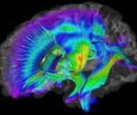 Autisme : l'imagerie cérébrale, une aide au diagnostic précoce?