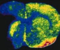 AVC : un biomarqueur pour réduire les risques de complication