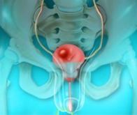 Cancer de la vessie : un simple test urinaire de détection précoce