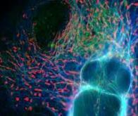 Cancer : découverte d'un nouveau mécanisme qui bloque les cellules malignes
