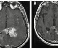 Cancer du cerveau : un espoir avec d'anciens médicaments
