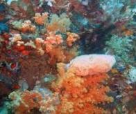 Cancer du col de l'utérus : l'éponge qui absorbe les cellules cancéreuses