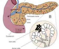 Cancer du pancréas : nouvelle protéine de ciblage