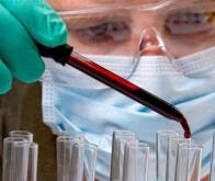 Cancer du Pancréas : un test sanguin plus précis que l'imagerie