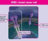 cancer du sein l 39 association de deux mol cules anti her2 ouvre une nouvelle voie th rapeutique. Black Bedroom Furniture Sets. Home Design Ideas
