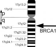 Cancer du sein: le mécanisme génétique d'action du gène BCRA1 enfin compris