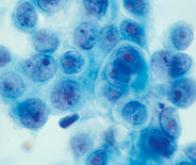 Cancer du sein : l'environnement professionnel en accusation