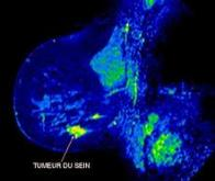 Cancer du sein : pourquoi le traitement anti-œstrogène devient-il inefficace ?