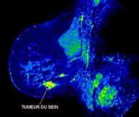 Cancer du sein triple négatif : résultats positifs de phase 2 pour le masitinib