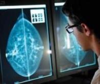 Cancer du sein : un test salivaire génétique pour connaître le risque à 5 ans