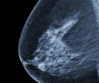 Cancer du sein : une nouvelle thérapie combinée pour diminuer les risques de récidive