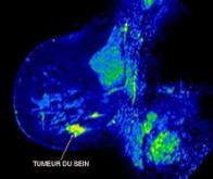 Cancer du sein : vers une meilleure prise en charge des métastases cérébrales