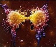 Cancer : la voie prometteuse de l'élimination des cellules-souches