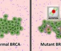 Cancer : un nouveau gène identifié