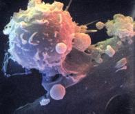 Cancer : une immunothérapie progressive, sous forme de gel