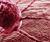 Cancers : un marqueur unique pour les dépister