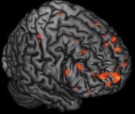 Certaines modifications de l'activité cérébrale pourraient annoncer la schizophrénie
