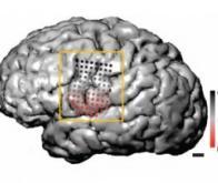 Cerveau et langage : y-a-t-il une différence de degré ou de nature entre l'homme et le singe ?