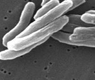 Comment la bactérie de la tuberculose contourne le système immunitaire