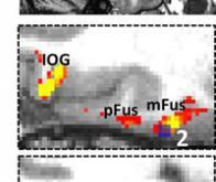 Comment le cerveau humain reconnaît un visage