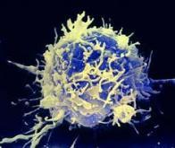 Comment les cellules des mélanomes neutralisent l'action des lymphocytes T cytotoxiques