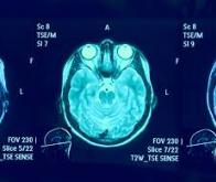 Commotion cérébrale : un refroidissement contrôlé des cellules du cerveau pour limiter les dégâts