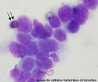 Compter les cellules tumorales circulantes pour mieux soigner le cancer du sein