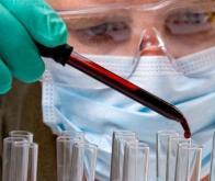 Covid-19 : un dosage sanguin pour prédire le risque de complications vasculaires