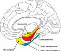 Découverte de la genèse moléculaire de la maladie d'Alzheimer