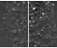 Découverte d'un nouveau mécanisme impliqué dans la migration des cellules cancéreuses