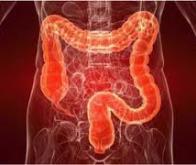 Découverte d'un nouveau mécanisme moléculaire à l'origine du cancer colorectal
