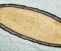 Découverte d'un virus d'amibe qui contrôle le noyau de son hôte à distance