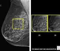 Dépistage du cancer du sein : la tomosynthèse fait mieux que la mammographie classique