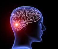 Des anomalies génétiques associées aux anévrismes cérébraux