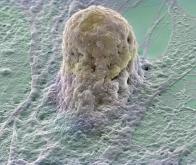 Des cellules pulmonaires humaines obtenues à partir de cellules souches