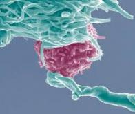 Des chercheurs découvrent un nouveau lymphocyte pour tuer des cellules cancéreuses