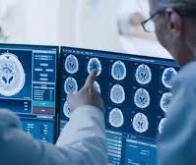 Des molécules pour lutter contre les lésions cérébrales
