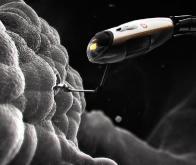 Des nanodrones pour éliminer le cholestérol