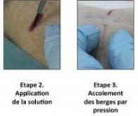 Des nanoparticules au service de la médecine régénératrice…