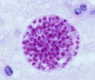 Des nanoparticules de pommes de terre contre la toxoplasmose !