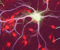 Des neurones de la mémoire fabriqués en laboratoire à partir de cellules souches