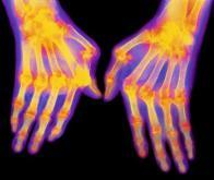 Des nouveaux médicaments contre la polyarthrite rhumatoïde
