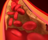 Des scientifiques créent des vaisseaux sanguins en laboratoire