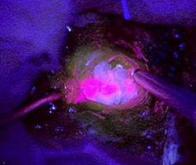 Des tumeurs au cerveau fluorescentes pour faciliter la chirurgie