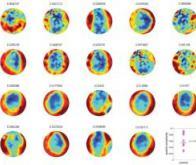 Détecter l'autisme grâce à la magnétoencéphalographie ?